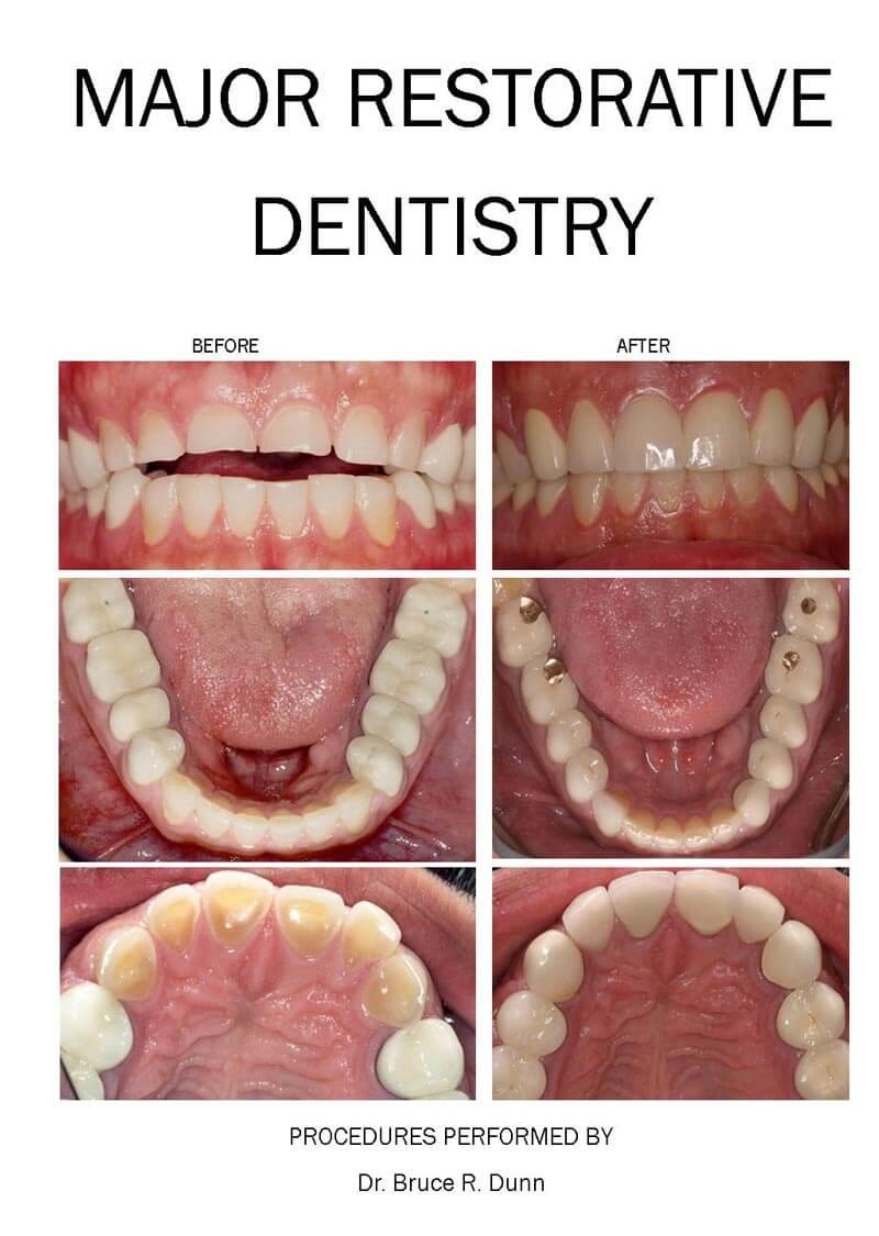 Major restorative dentistry with Cody Dental Group